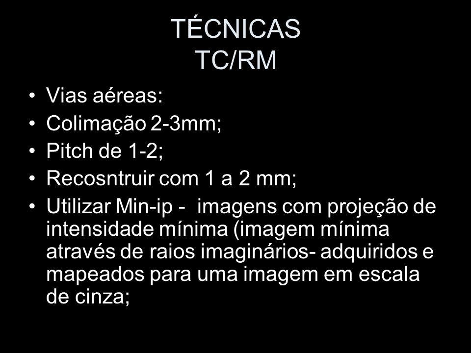 TÉCNICAS TC/RM Vias aéreas: Colimação 2-3mm; Pitch de 1-2;