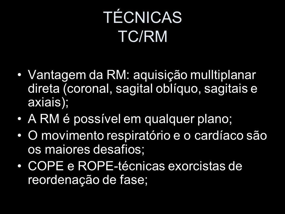 TÉCNICAS TC/RM Vantagem da RM: aquisição mulltiplanar direta (coronal, sagital oblíquo, sagitais e axiais);