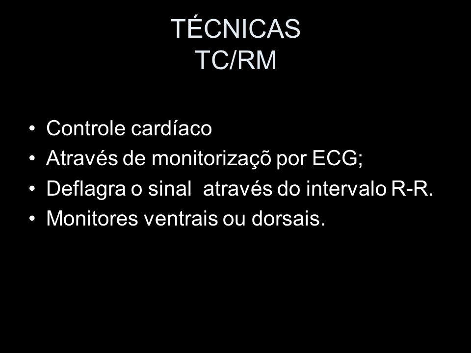 TÉCNICAS TC/RM Controle cardíaco Através de monitorizaçõ por ECG;