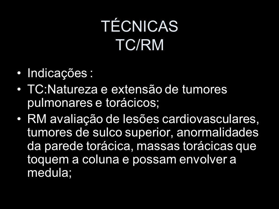 TÉCNICAS TC/RM Indicações :