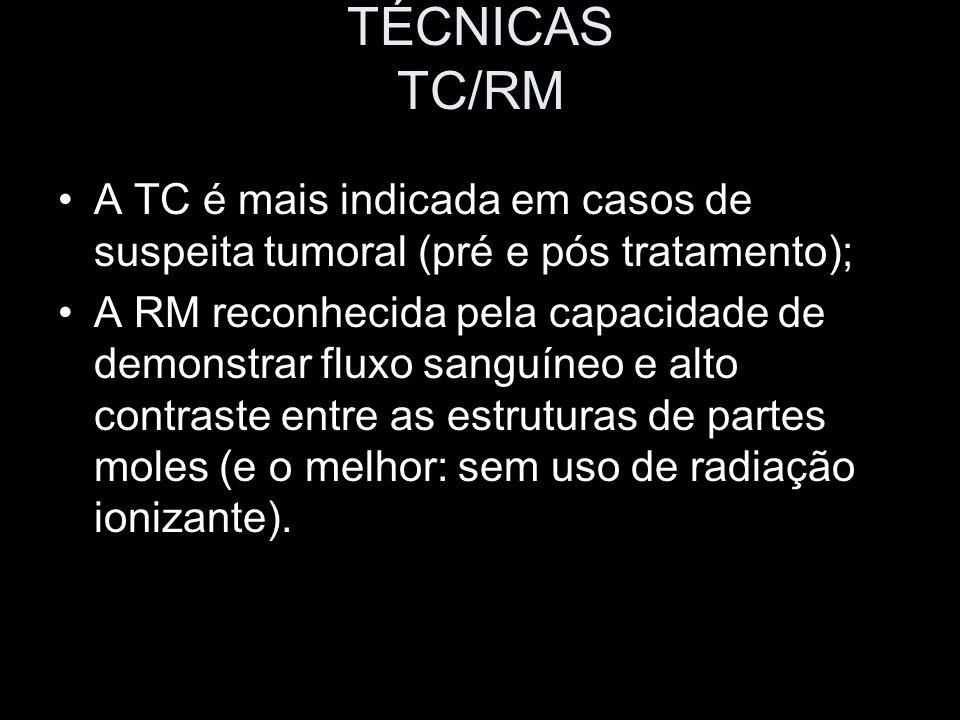 TÉCNICAS TC/RM A TC é mais indicada em casos de suspeita tumoral (pré e pós tratamento);