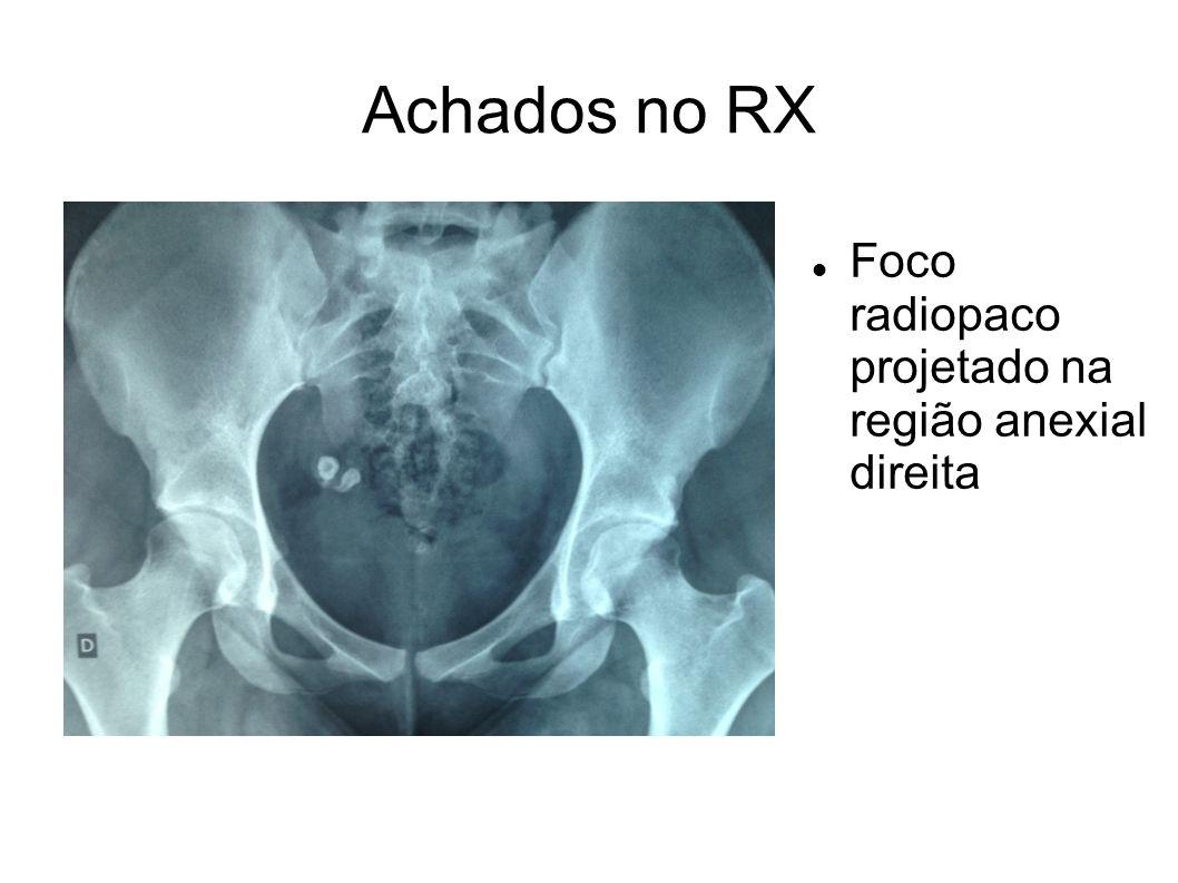 Achados no RX Foco radiopaco projetado na região anexial direita