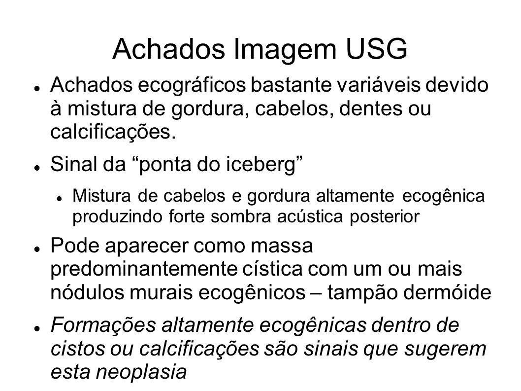 Achados Imagem USG Achados ecográficos bastante variáveis devido à mistura de gordura, cabelos, dentes ou calcificações.
