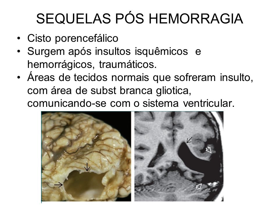 SEQUELAS PÓS HEMORRAGIA
