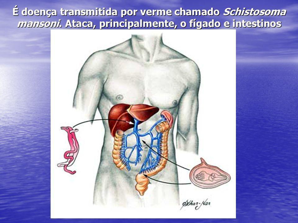 É doença transmitida por verme chamado Schistosoma mansoni
