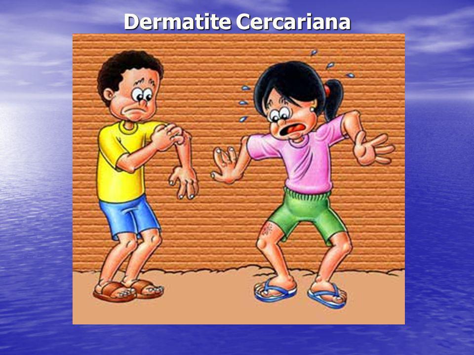 Dermatite Cercariana