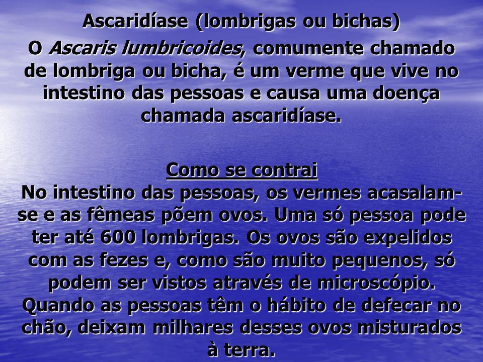 Ascaridíase (lombrigas ou bichas)