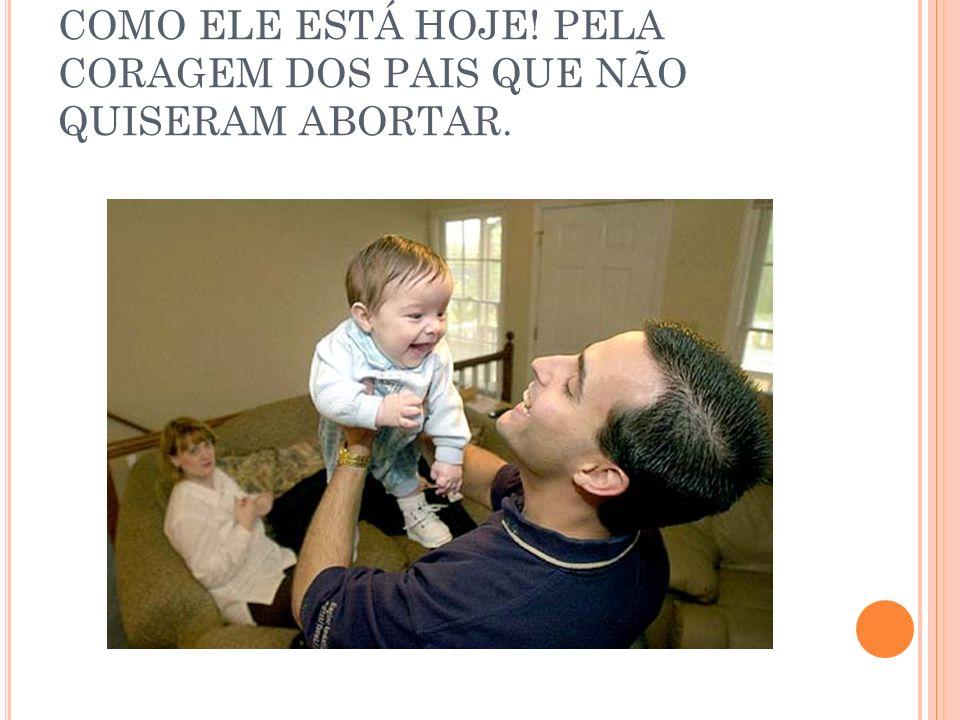 COMO ELE ESTÁ HOJE! PELA CORAGEM DOS PAIS QUE NÃO QUISERAM ABORTAR.