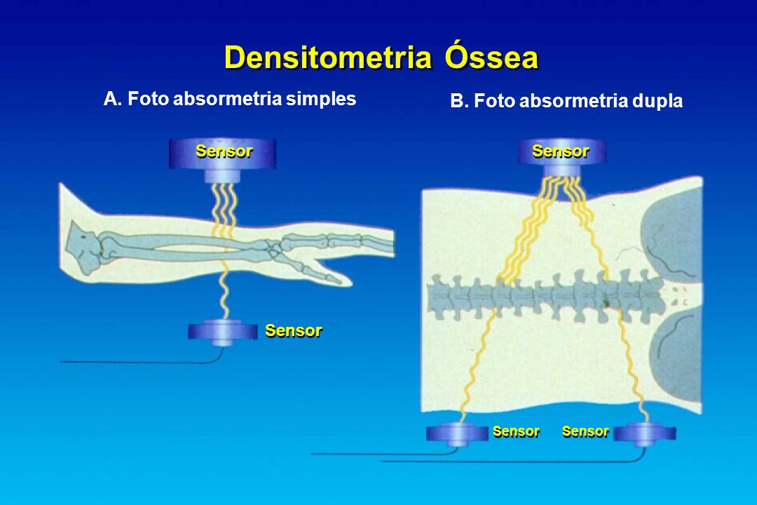 A. Foto absormetria simples