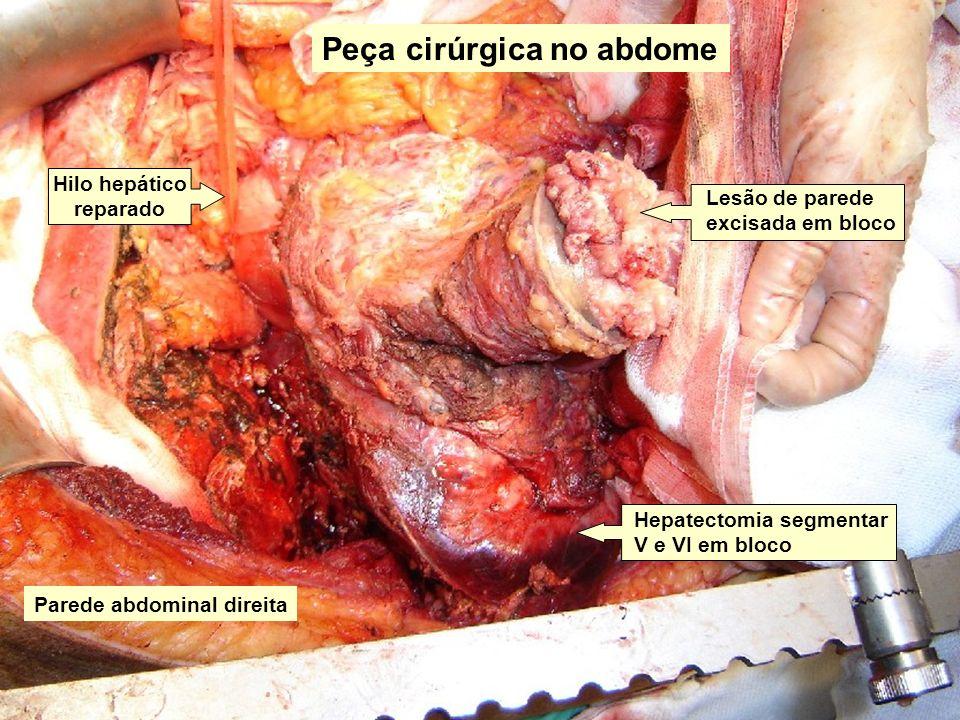 Peça cirúrgica no abdome