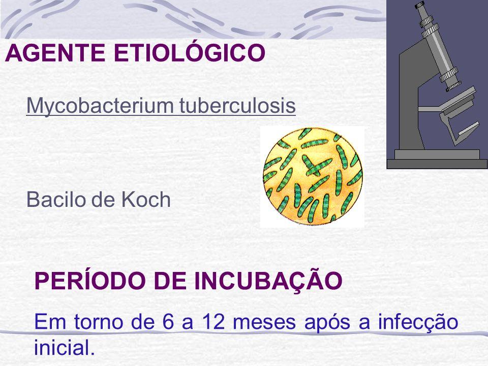 AGENTE ETIOLÓGICO PERÍODO DE INCUBAÇÃO Mycobacterium tuberculosis