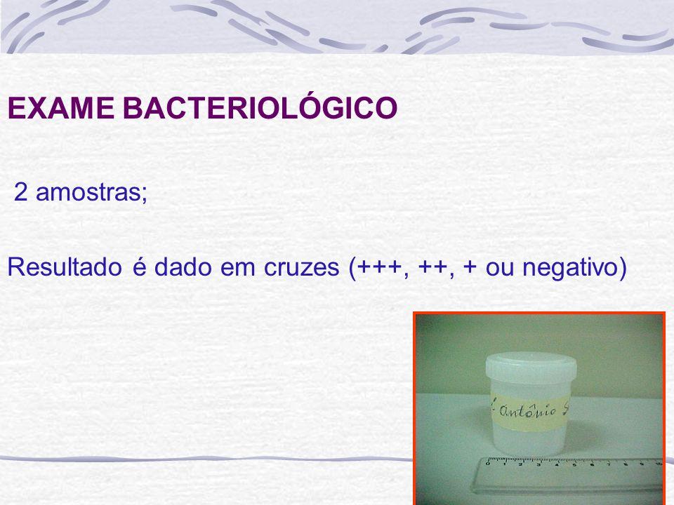 EXAME BACTERIOLÓGICO 2 amostras;