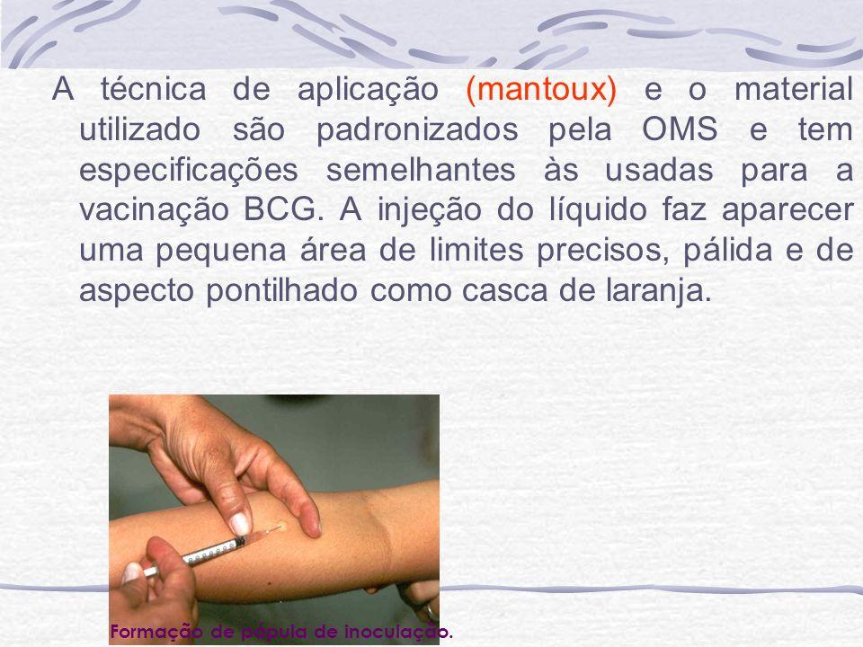A técnica de aplicação (mantoux) e o material utilizado são padronizados pela OMS e tem especificações semelhantes às usadas para a vacinação BCG. A injeção do líquido faz aparecer uma pequena área de limites precisos, pálida e de aspecto pontilhado como casca de laranja.