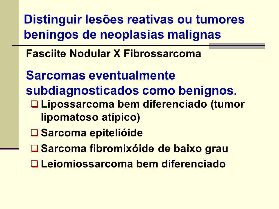 Sarcomas eventualmente subdiagnosticados como benignos.