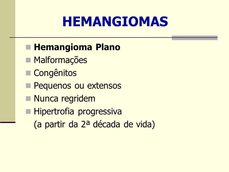 HEMANGIOMAS Hemangioma Plano Malformações Congênitos