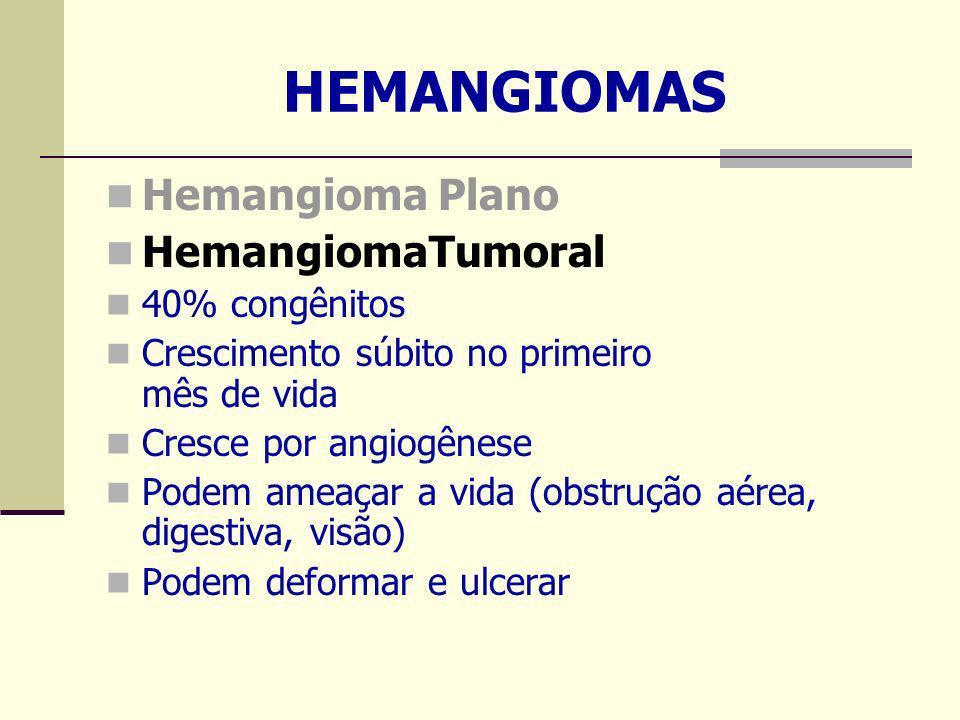 HEMANGIOMAS Hemangioma Plano HemangiomaTumoral 40% congênitos