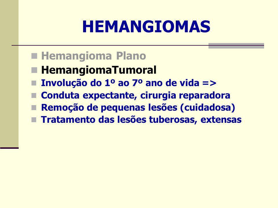 HEMANGIOMAS Hemangioma Plano HemangiomaTumoral