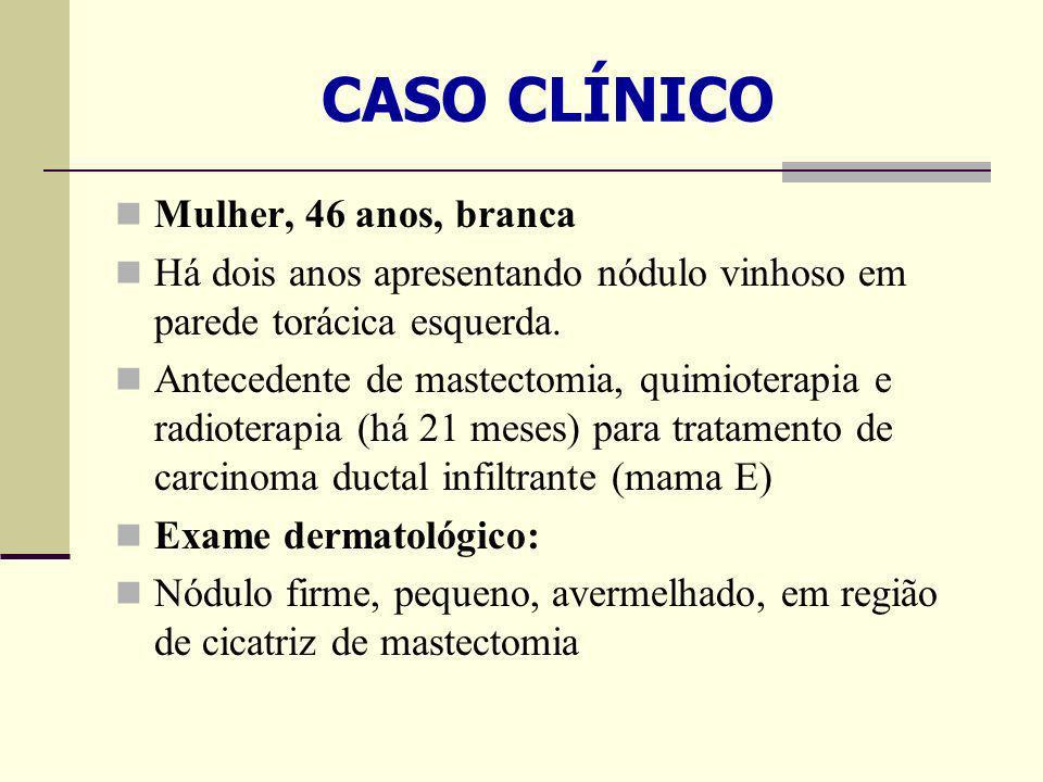 CASO CLÍNICO Mulher, 46 anos, branca
