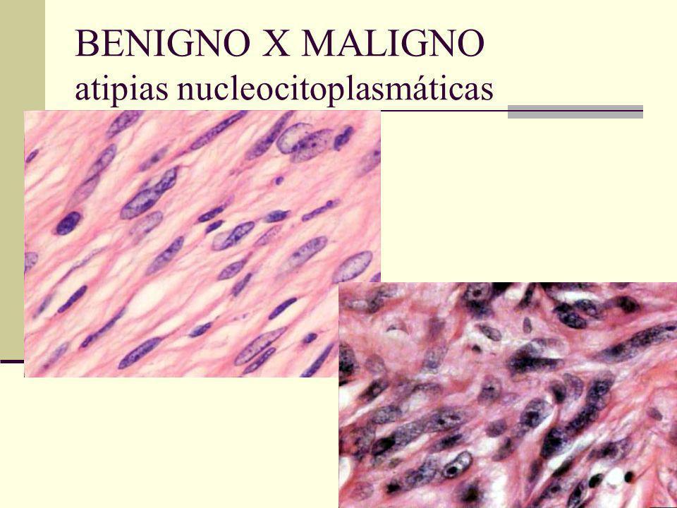 BENIGNO X MALIGNO atipias nucleocitoplasmáticas