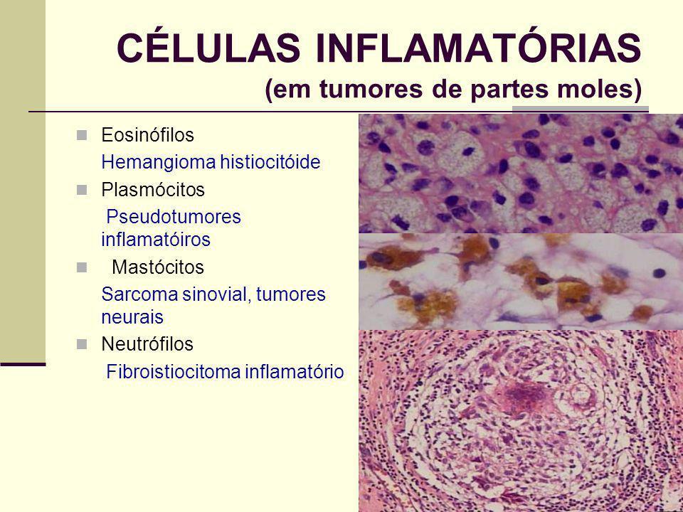 CÉLULAS INFLAMATÓRIAS (em tumores de partes moles)