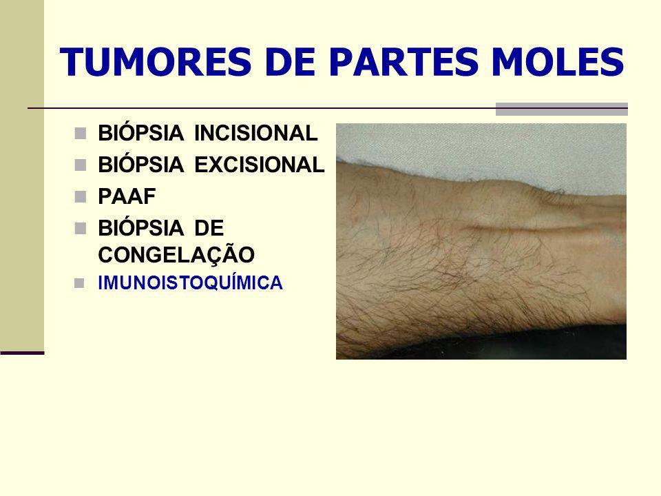 TUMORES DE PARTES MOLES