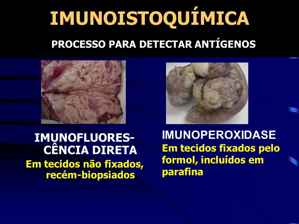 IMUNOFLUORES-CÊNCIA DIRETA Em tecidos não fixados, recém-biopsiados