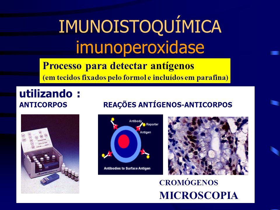 IMUNOISTOQUÍMICA imunoperoxidase