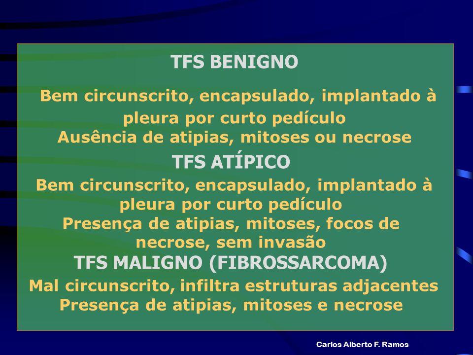 TFS BENIGNO Bem circunscrito, encapsulado, implantado à pleura por curto pedículo Ausência de atipias, mitoses ou necrose