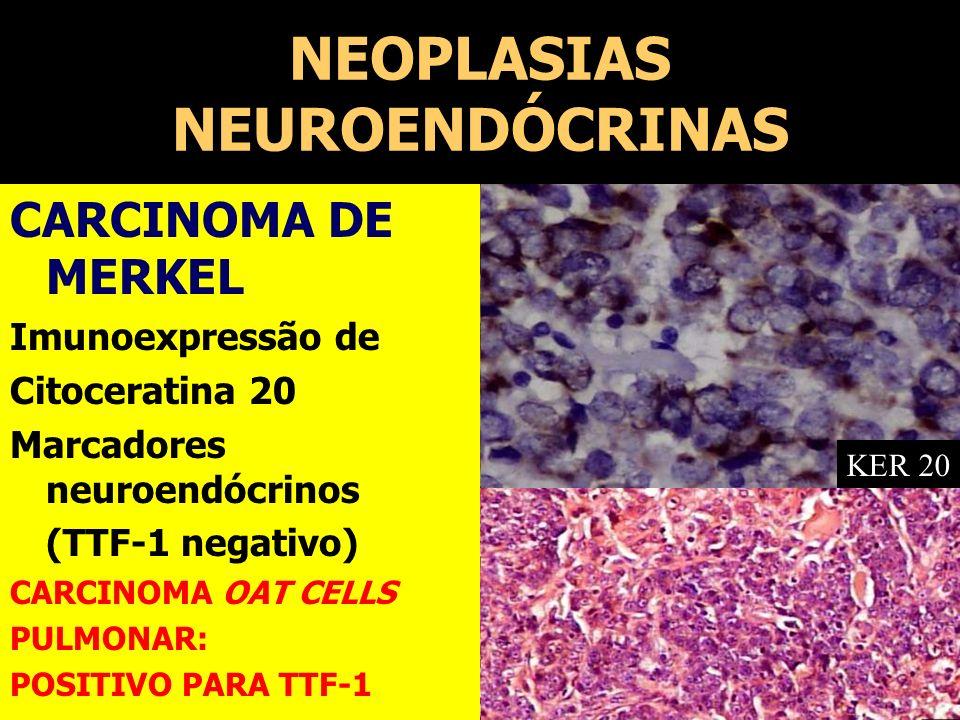 NEOPLASIAS NEUROENDÓCRINAS