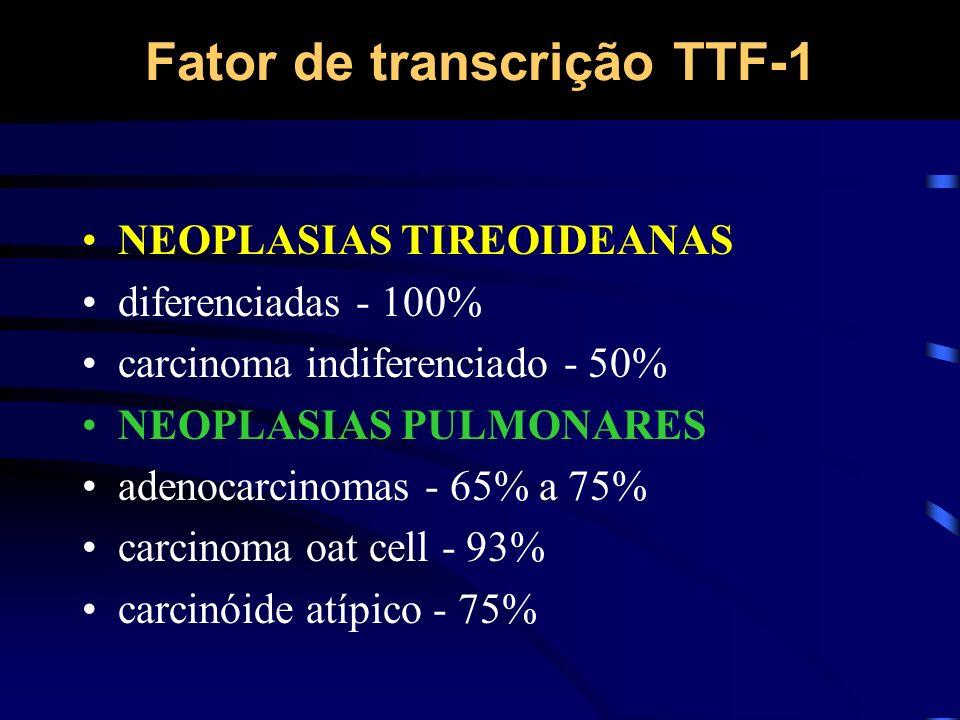 Fator de transcrição TTF-1