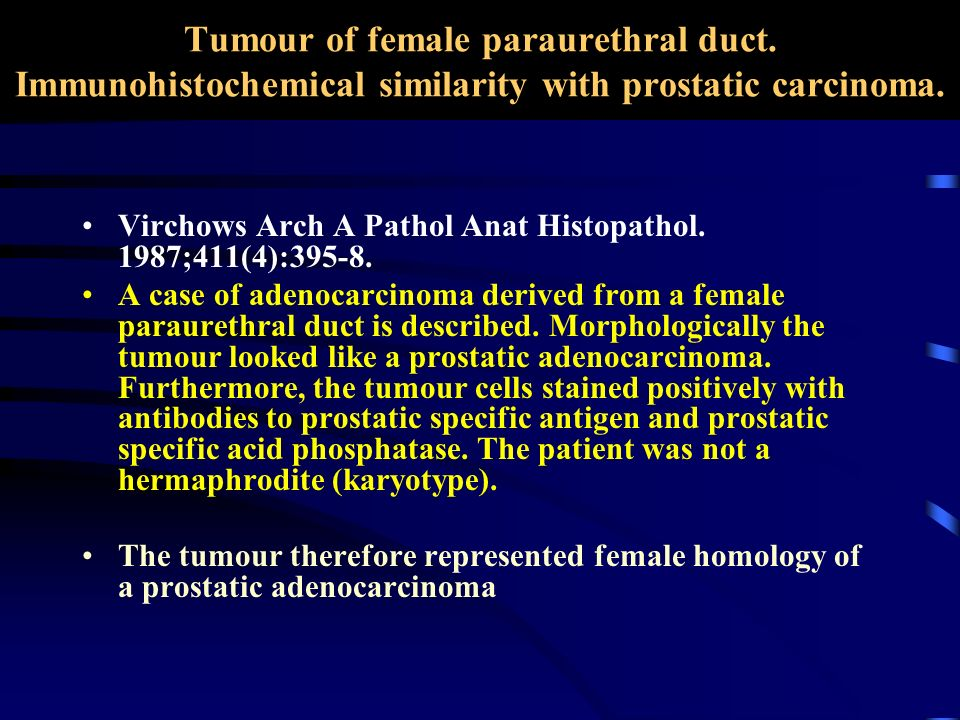 Tumour of female paraurethral duct