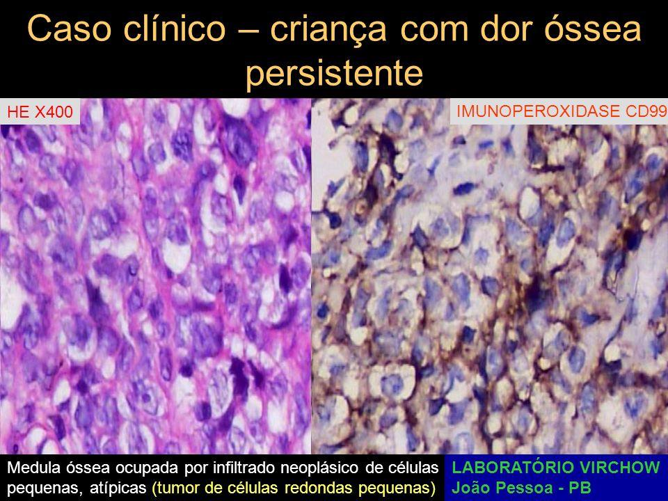 Caso clínico – criança com dor óssea persistente