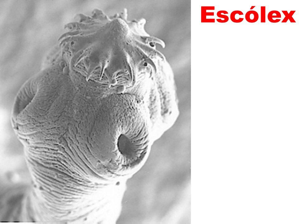 Escólex