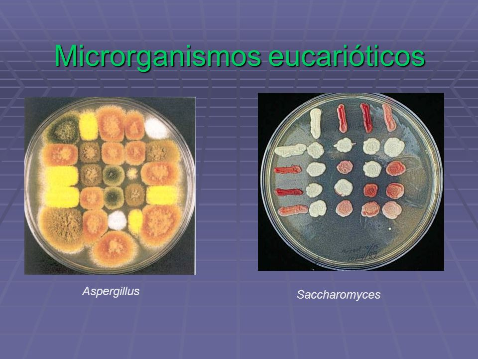 Microrganismos eucarióticos