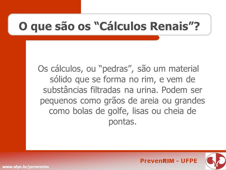 O que são os Cálculos Renais