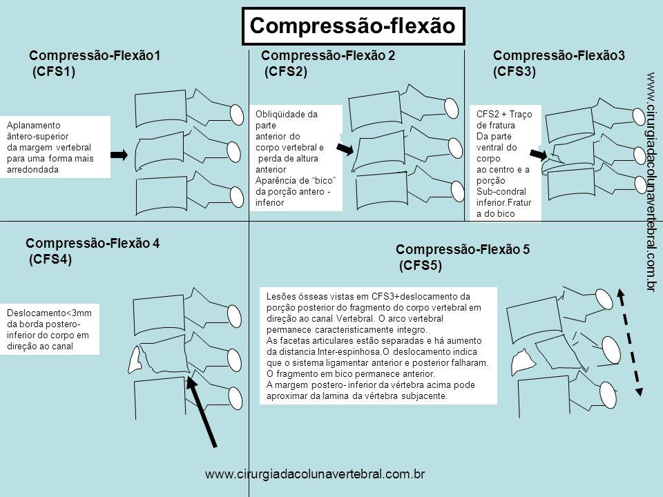 Compressão-flexão Compressão-Flexão1 (CFS1) Compressão-Flexão 2 (CFS2)