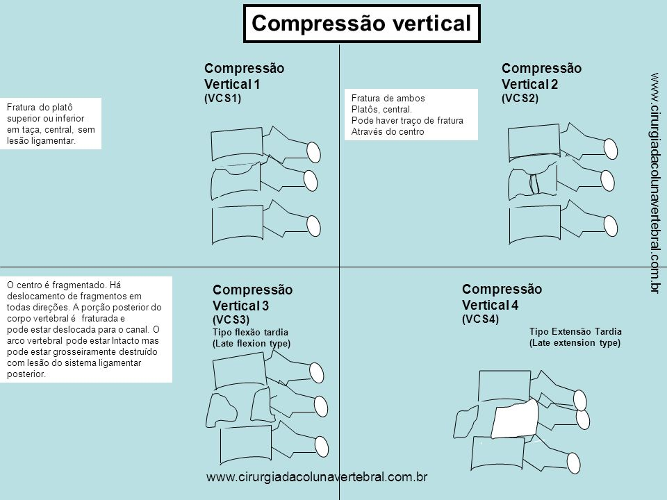 Compressão vertical Compressão Vertical 1 Compressão Vertical 2