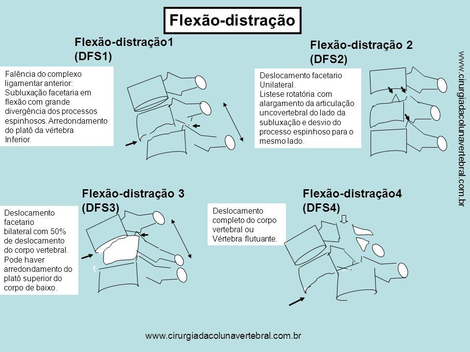 Flexão-distração Flexão-distração1 (DFS1) Flexão-distração 2 (DFS2)
