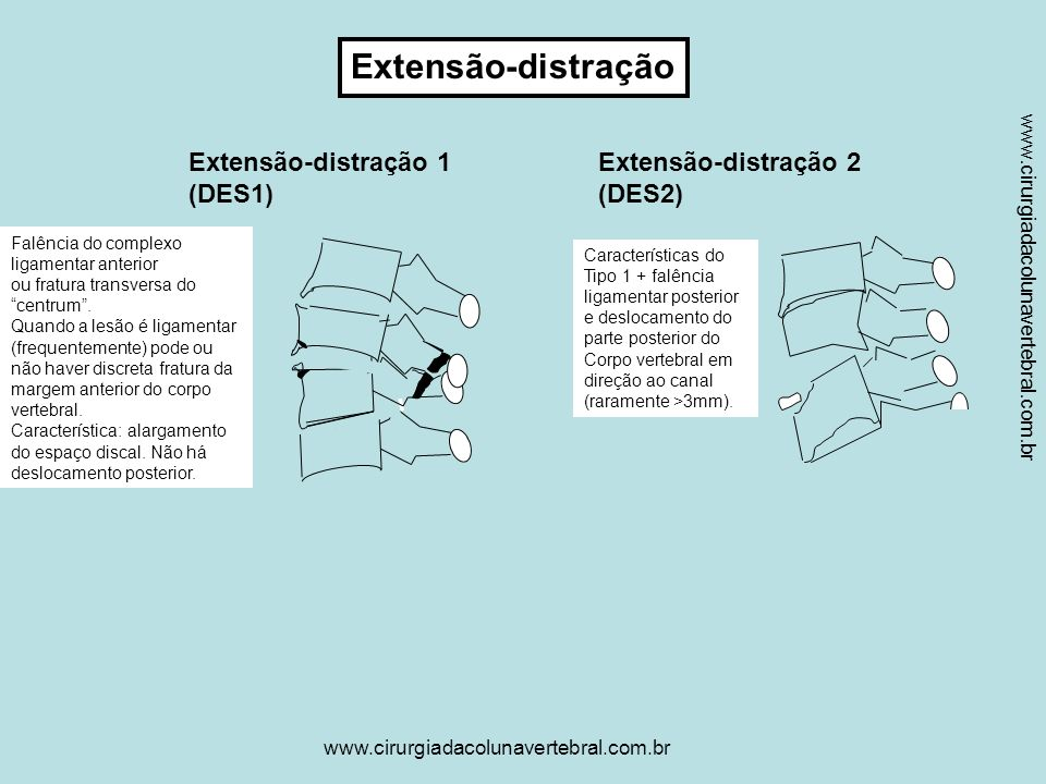 Extensão-distração Extensão-distração 1 (DES1) Extensão-distração 2