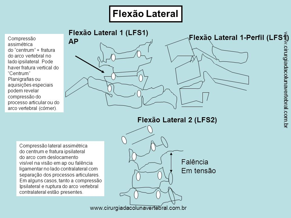 Flexão Lateral Flexão Lateral 1 (LFS1) AP