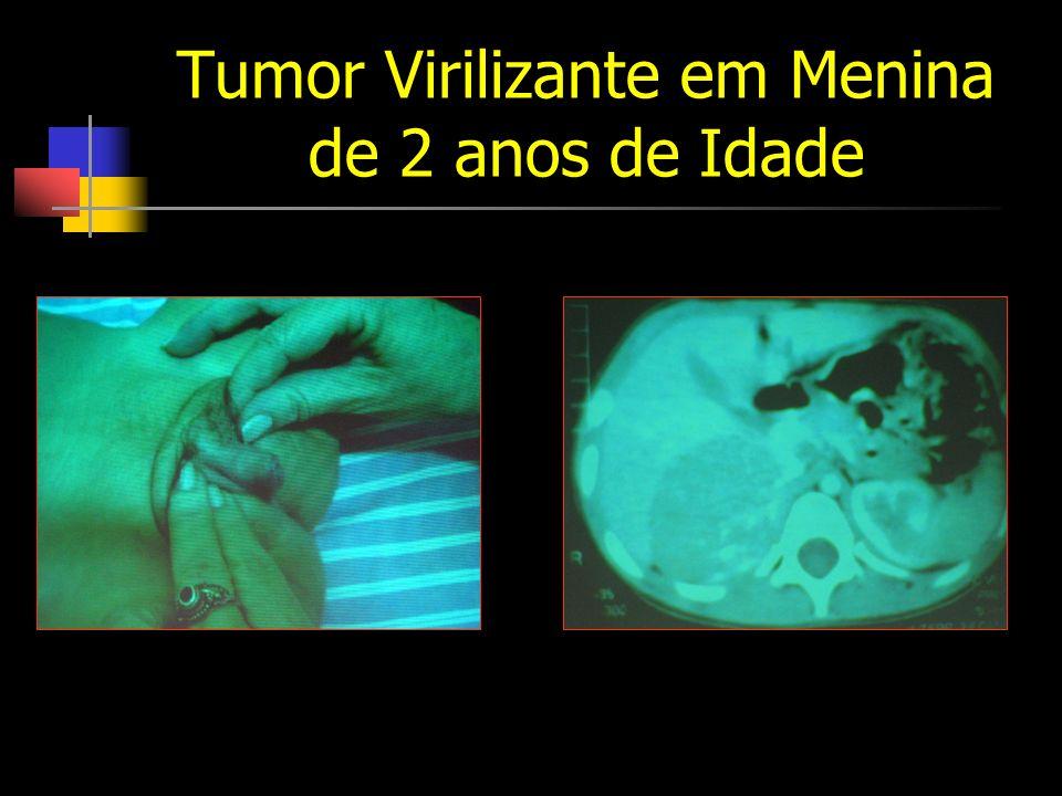 Tumor Virilizante em Menina de 2 anos de Idade
