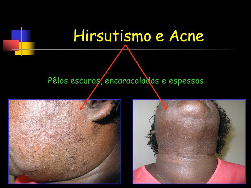 Hirsutismo e Acne Pêlos escuros, encaracolados e espessos