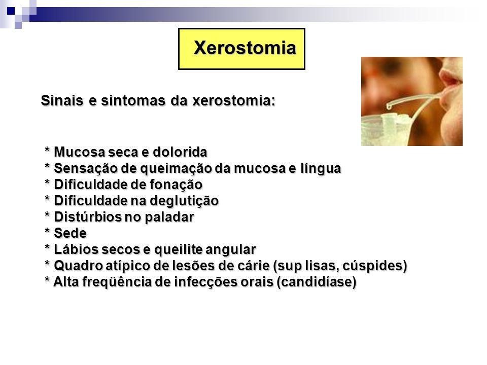 Xerostomia Sinais e sintomas da xerostomia: * Mucosa seca e dolorida