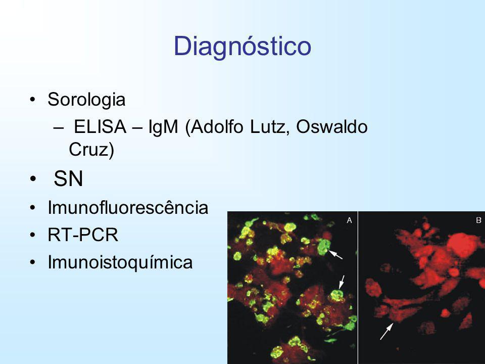 Diagnóstico SN Sorologia ELISA – IgM (Adolfo Lutz, Oswaldo Cruz)