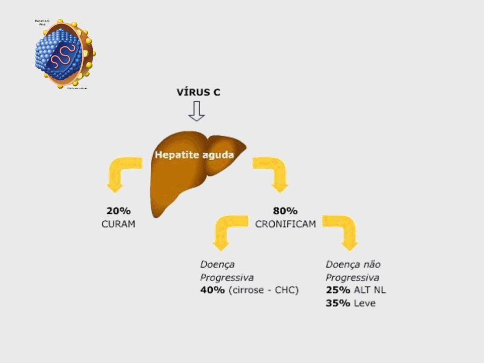 Carcinoma é o reflexo da prevalência do HBV e HCV naquela região