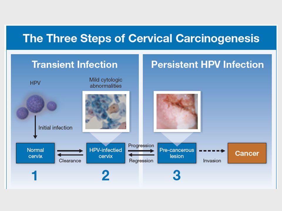 Passos podem ser conceitualizados como infecção como tipos especificos de alto risco do HPV, progressão para uma lesão pre-cancerigena, e invasão.