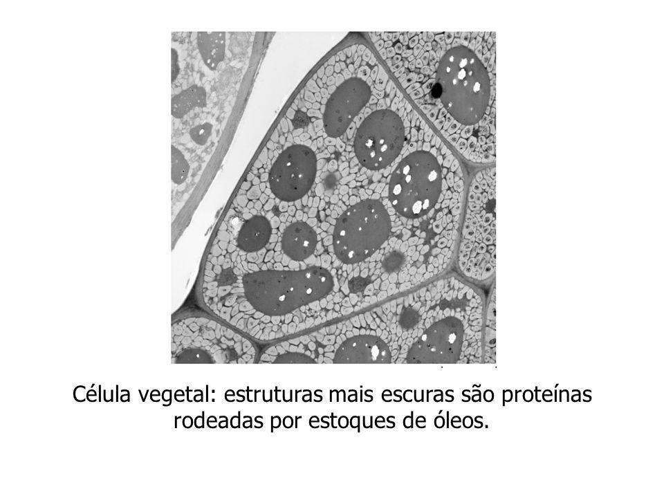Célula vegetal: estruturas mais escuras são proteínas rodeadas por estoques de óleos.