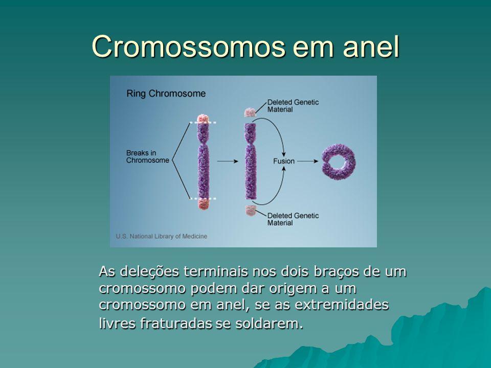 Cromossomos em anel