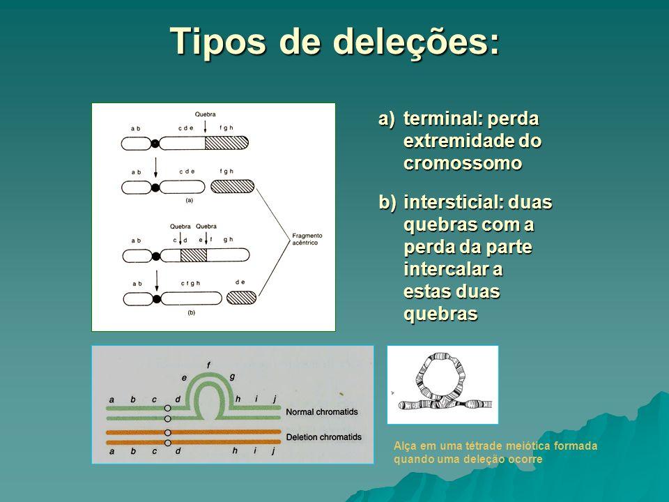 Tipos de deleções: terminal: perda extremidade do cromossomo