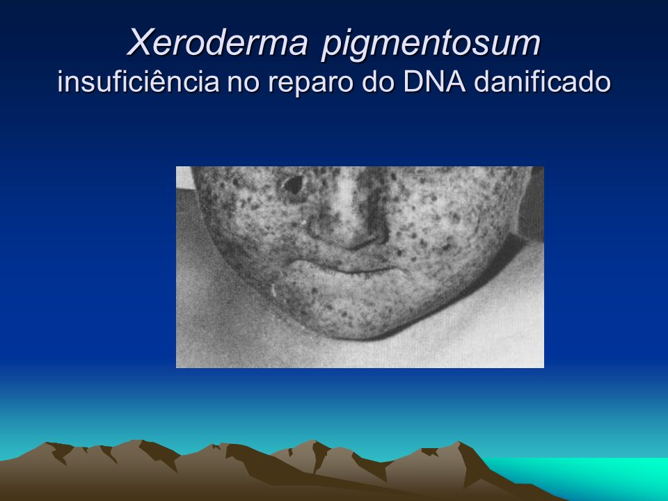 Xeroderma pigmentosum insuficiência no reparo do DNA danificado
